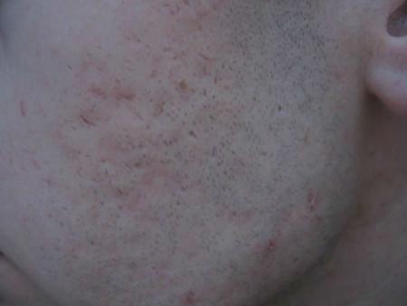 acnenali