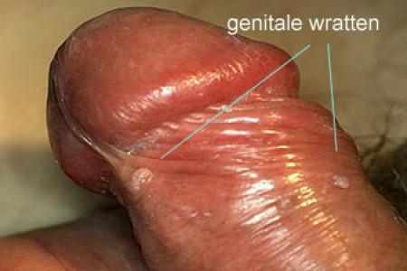 Grote lul vs kleine vagina