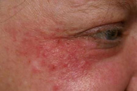 periorale dermatitis oorzaken